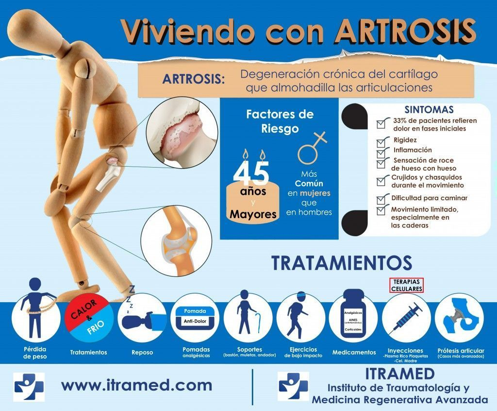 INFOGRAFICO - VIVIENDO CON ARTROSIS - www.itramed.com