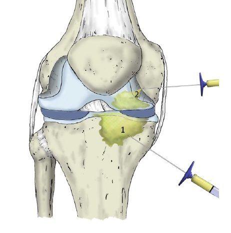 Tratamiento Lesiones Rodilla