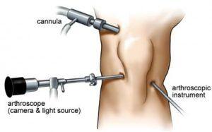 Artroscopia de rodilla para meniscectomía, o retirar una parte del menisco.