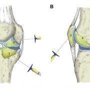 Infiltración intraósea de rodilla