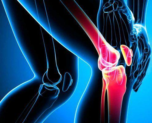 Las lesiones de rodilla y la práctica deportiva