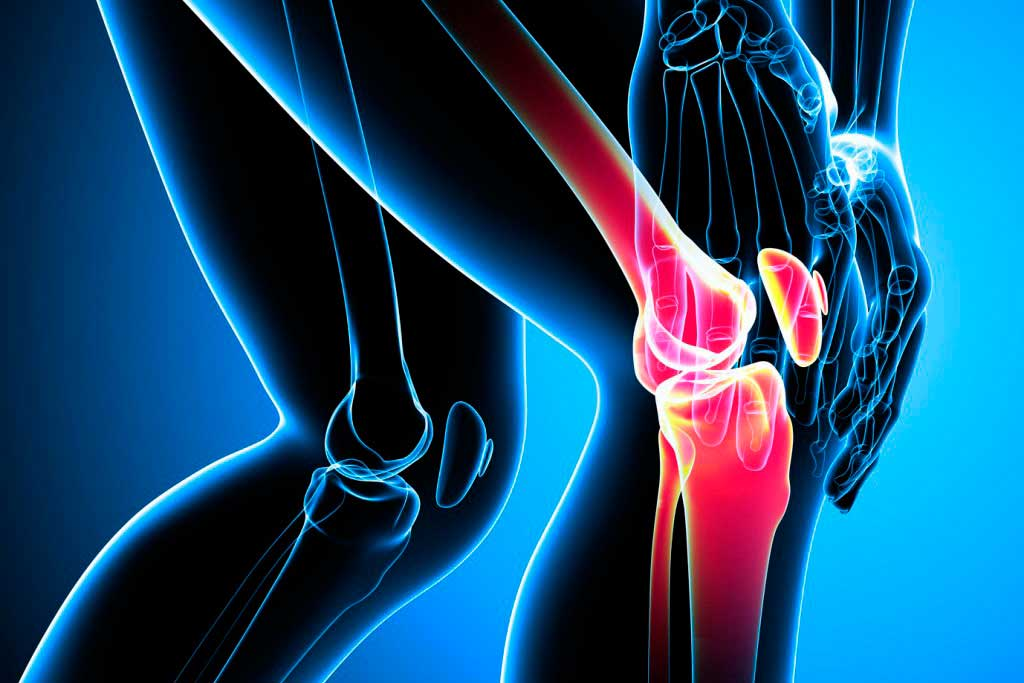 diferentes tipos de lesiones de rodilla