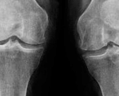 Radiografía de artrosis de rodilla
