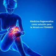 Medicina regenerativa para la artrosis en ITRAMED