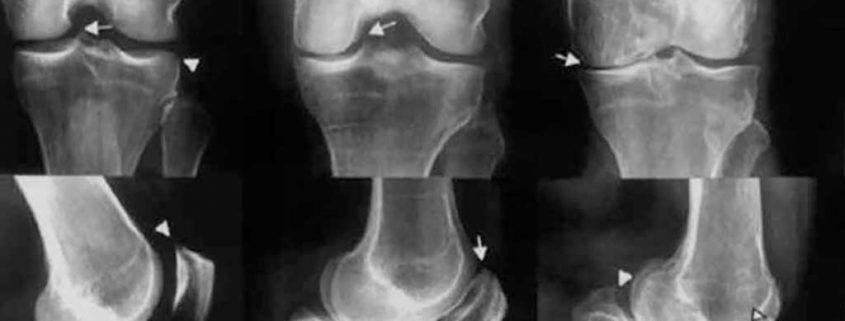Escala Hallback para la artrosis