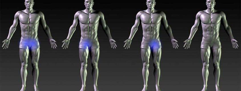 Osteopatia de pubis Pubalgia