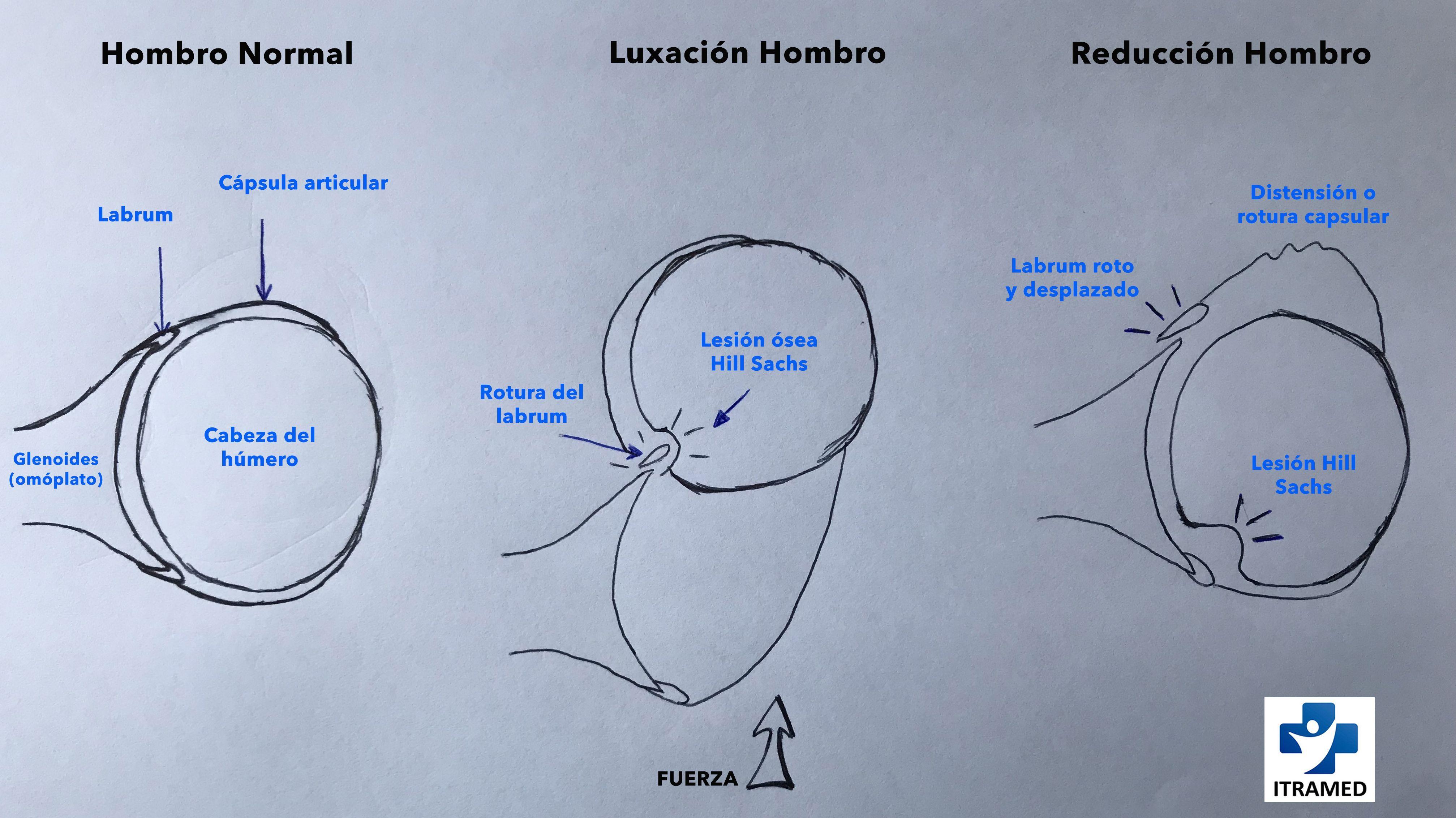 Excelente Roberto Burton Anatomía De La Melancolía Modelo - Imágenes ...