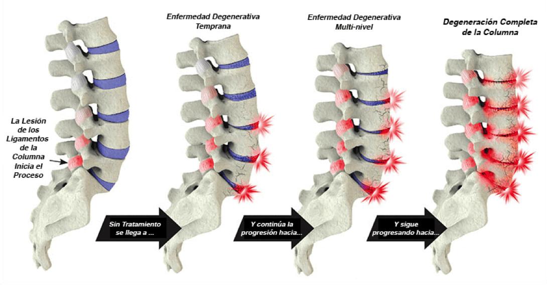 Degeneración progresiva de la columna lumbar